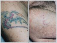 eliminamos tus tatuajes