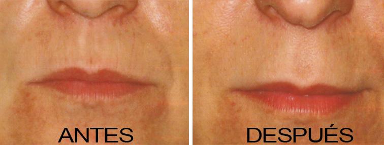 facial antes y despues