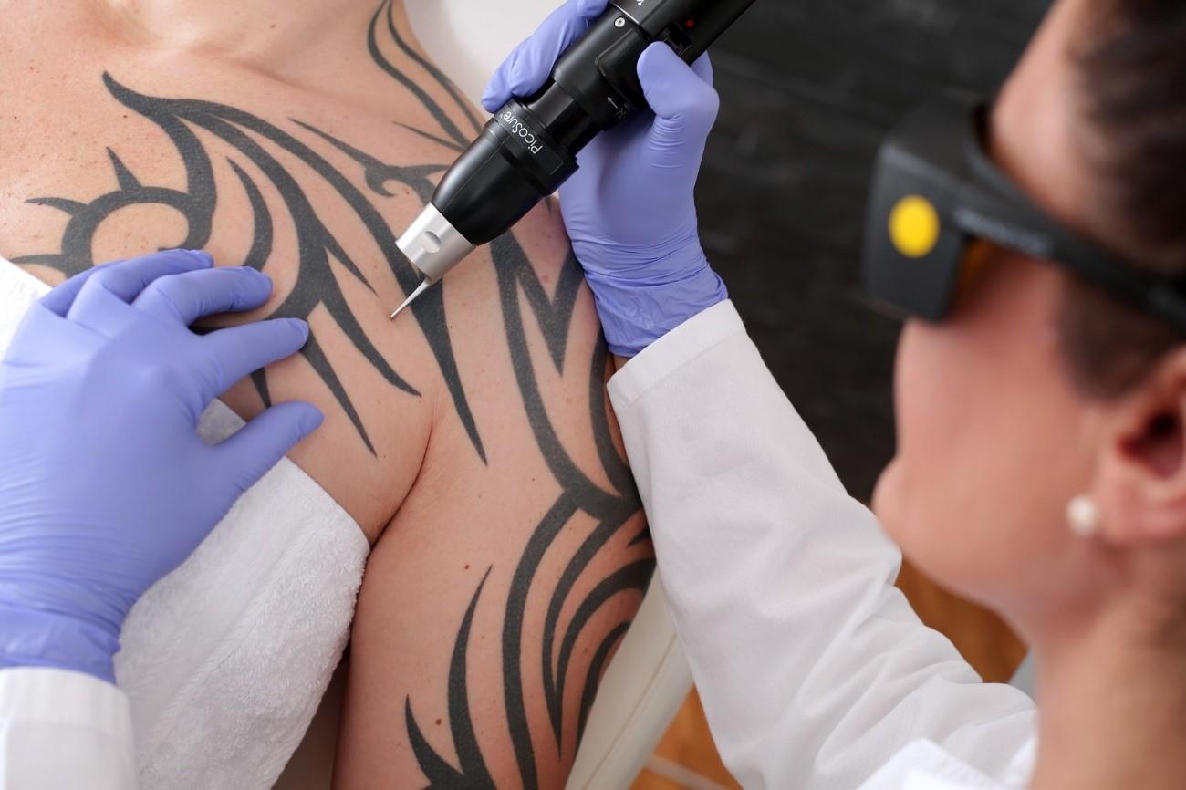 Borrado de tatuajes mediante láser, un método de garantías