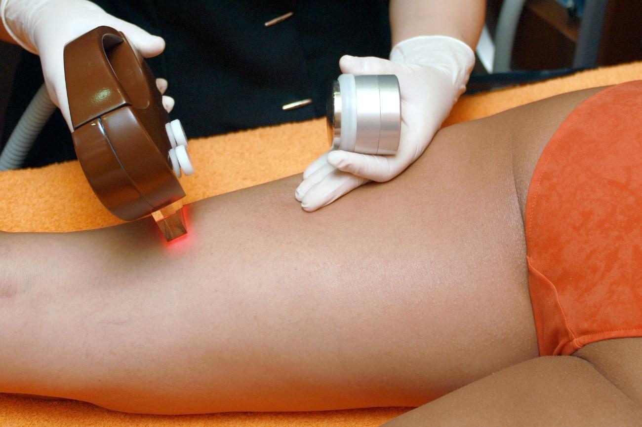 5 ventajas de la depilación láser que la convierten en una opción ideal
