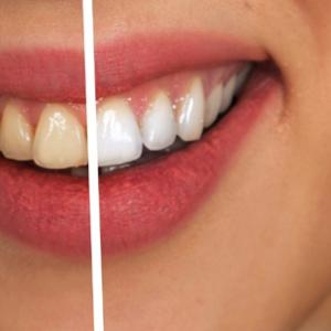 Descubre los beneficios del blanqueamiento dental