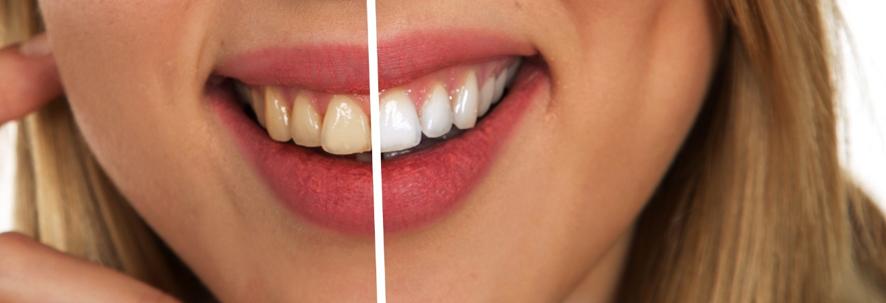 Los beneficios estéticos del blanqueamiento dental